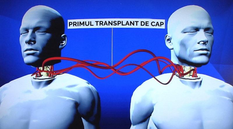 Primul transplant de cap amânat pentru începutul anului viitor