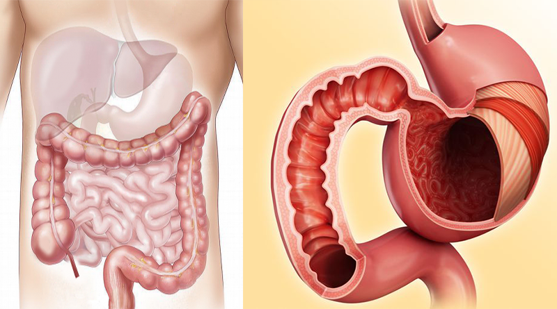 deparazitare de viermi intestinali
